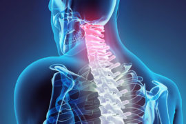 Cervical Disc Replacement Surgery